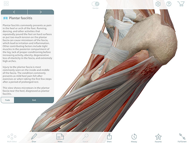 3D view and description of plantar fasciitis