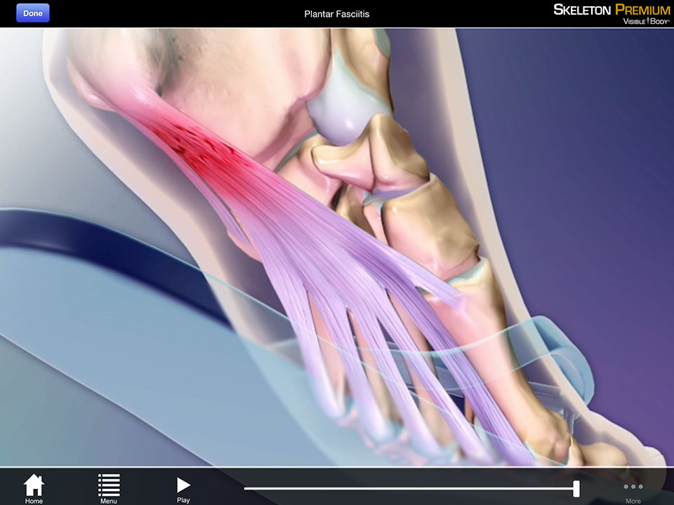 Animation of Plantar Fasciitis